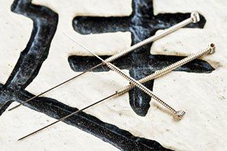 Akupunktio on kiinalaisen lääketieteen tunnetuin hoitomuoto. Tässä kuvassa äkyy erityyppisiä akupunktioneuloja