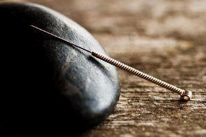 Akupunktiohoidossa käytettävä neula asetettuna kiveä vasten