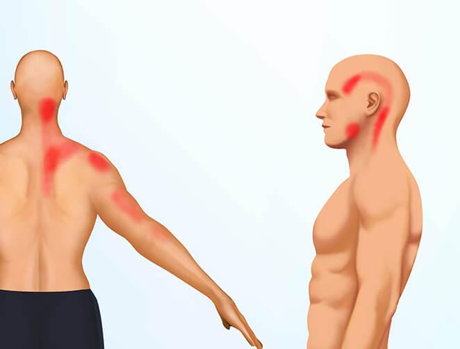 Epäkäslihaksen heijastekipu voi tuntua niskassa, yläselässä, hartioissa, olkapäässä, kädessä, ohimoilla, tai leuassa
