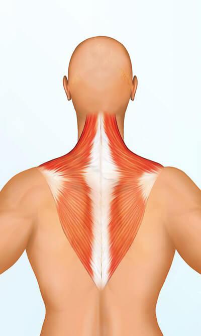 Epäkäslihas on suurikokoinen lihas niskan, hartioiden ja yläselän alueella