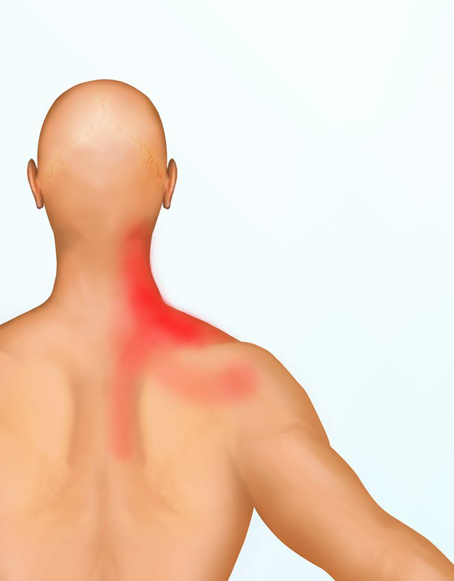 Lavankohottajalihaksen kipu tuntuu niskan sivuosassa ja hartioissa. Pään kääntäminen voi olla myös vaikeaa.