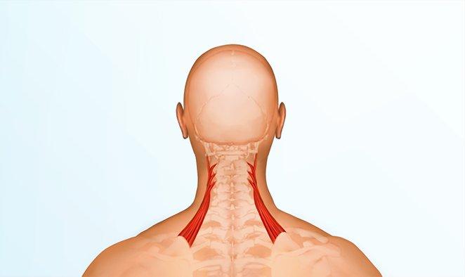 Lavankohottajalihas (levator scapulae) on pienikokoinen lihas niskan sivulla.