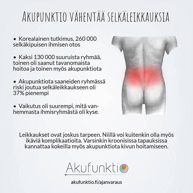 Akupunktio vähentää riskiä joutua selkäleikkaukseen.